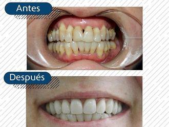 Implantes dentales - 794385