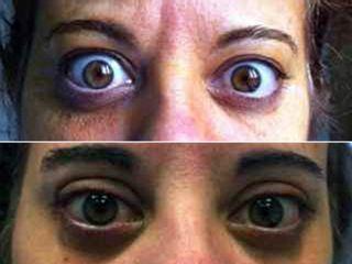 Antes y después Orbitopatía tiroidea