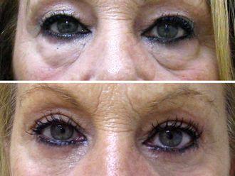 Rejuvenecimiento facial-516553