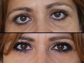 Antes y después Rejuvenecimiento periocular oculoplástico