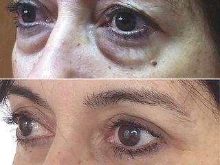 Antes y después Blefaroplastia superior e inferior con lipoestructura