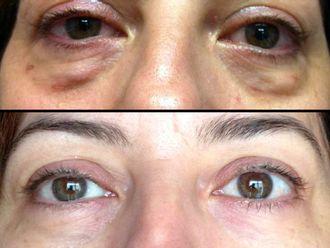 Rejuvenecimiento facial-516556