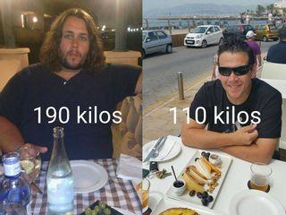 Cirugía Obesidad