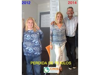Antes y después Cirugía Obesidad