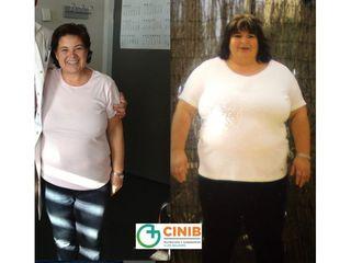 Antes y después Cirugia Obesidad