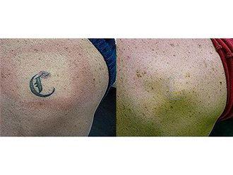 Eliminación de tatuajes - 499604