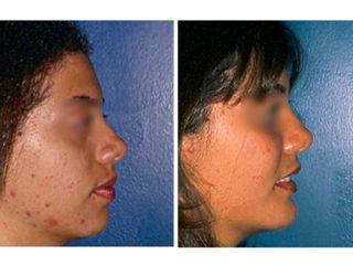 Antes y después Cirugía de pómulos