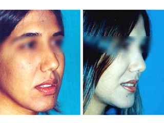 Cirugía de pómulos