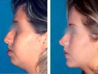 Antes y después Mentonplastia y rinoplastia
