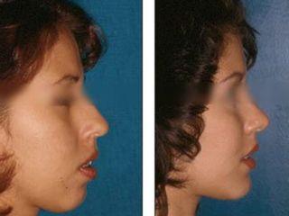 Antes y después Mentonplastia y rinomodelación