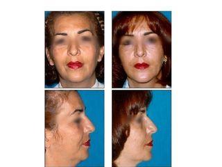 Antes y después Estiramiento facial