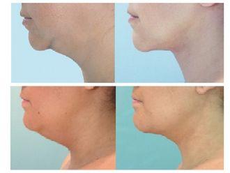 Liposucción - 493526