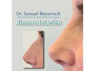 Rinomodelación - Dr. Samuel Benarroch