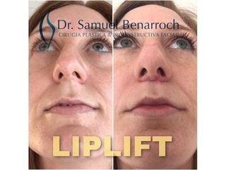 Lifting  - Dr. Samuel Benarroch