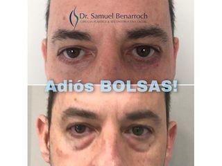 Eliminación de ojeras - Dr. Samuel Benarroch