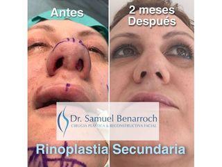 Rinoplastia - Dr. Samuel Benarroch