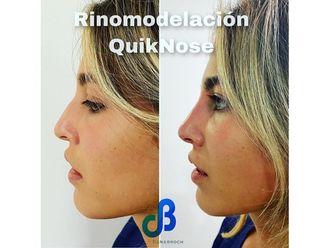Rinomodelación-713532