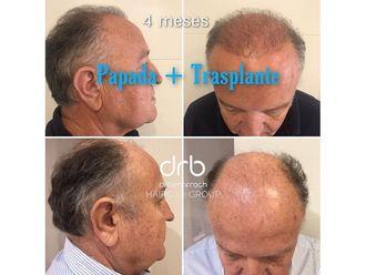 Trasplantes capilares - 713533