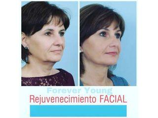 Rejuvenecimiento facial - Dr. Samuel Benarroch