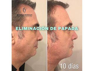 Eliminación de papada - Dr. Samuel Benarroch