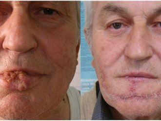 Cirugía reconstructiva - 793941