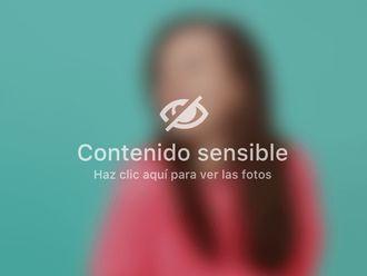 Ginecomastia - 793942