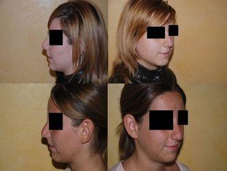 Cirugía estética-741713