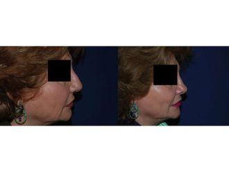 Cirugía estética-741716