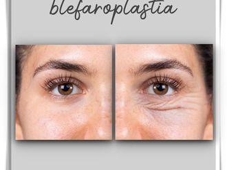 Blefaroplastia - 787388