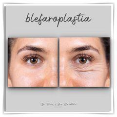 Blefaroplastia - Doctor Terán & Doctora Zavalloni