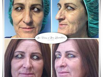 Rejuvenecimiento facial-787493