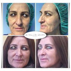 Doctor Terán & Doctora Zavalloni  - Rejuvenecimiento Facial