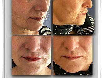 Rejuvenecimiento facial - 794301