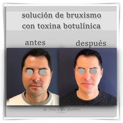 Doctor Terán & Doctora Zavalloni - Bótox