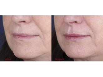 Aumento labios - 509673