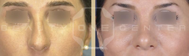 Rinoplastia antes y después.jpg