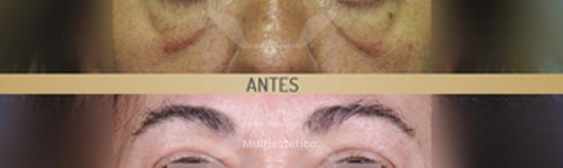 Blefaroplastia antes y después.jpg