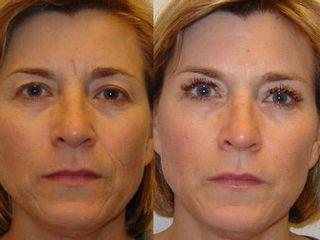 Antes y después Entrecejo y rellenos faciales en zona naso-labial