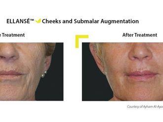 Rellenos faciales-500442