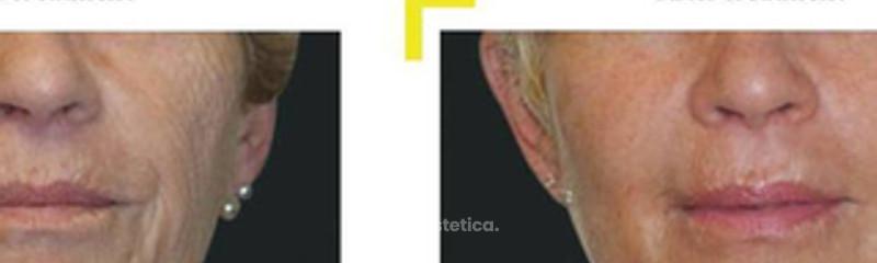 regeneracion facial.jpg