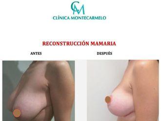 Reconstrucción mamaria-628860