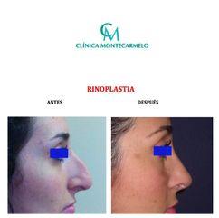 Antes y después Rinoplastia - Clínica Montecarmelo