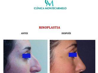 Rinoplastia - 701687