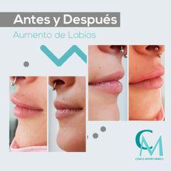 Antes y después Aumento de labios - Clínica Montecarmelo
