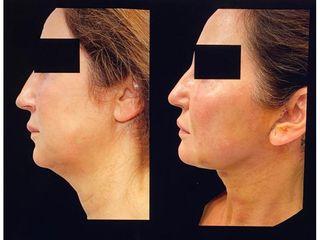 Liposucción - Clínica Montecarmelo