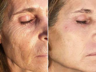 Rejuvenecimiento facial - 794388