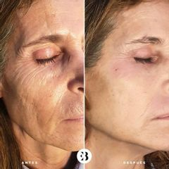 Rejuvenecimiento Facial PlexR Dra Elena Berezo