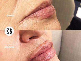 Aumento labios - 794391