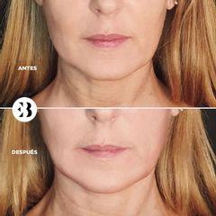 Marcación mandibular Ácido Hialurónico Dra Elena Berezo