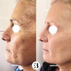 Botox Dra Elena Berezo